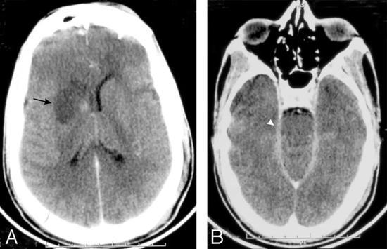 对比度增强的CT脑扫描显示右基底神经节梗塞(箭头,A)和增强的渗出物在脑内池(箭头,B)