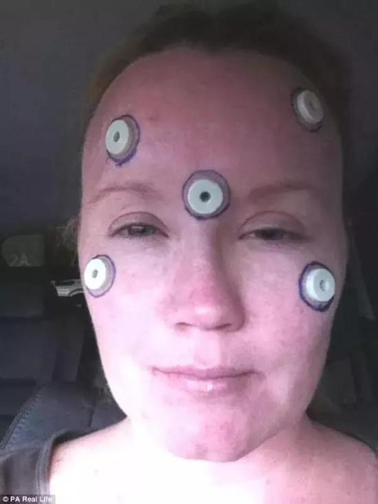 最终,克莱尔只好选择了眼角膜移植,但手术并不成功。