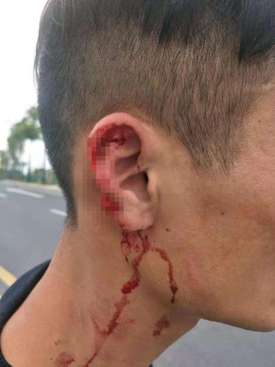 江西一滴滴司机被出租司机咬伤耳朵 警方-正在调查中 股票配资