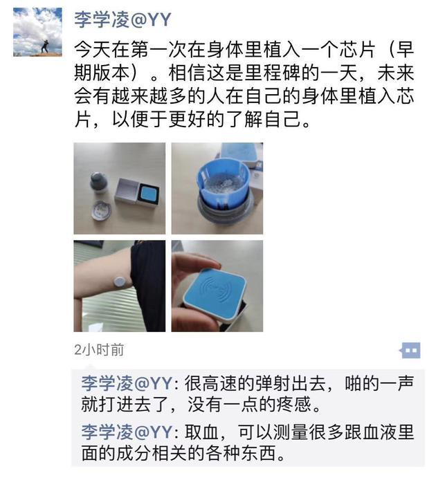 Airdoc张大磊回应李学凌植入芯片:记录有趣瞬间而已 股票行情